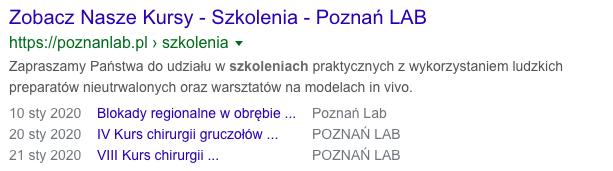 Przykład wyników wyszukiwania z danymi strukturalnymi Event